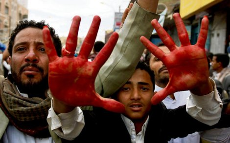 yemen-blood-stained-hand